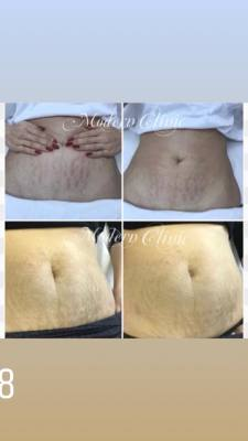 Stretch Marks Treatment